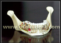 Dental shape of Teeth implant Teaching Model